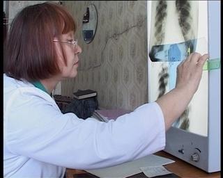 Профилактика туберкулеза - муниципальная программа