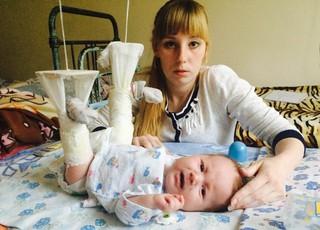 Малышу, которому на приёме у врача в Уссурийске сломали ножки, сняли гипс
