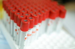 Еще 70 случаев заражения коронавирусом выявили в Приморье